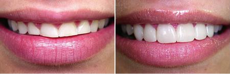 Tratamentos Dentários Estéticos