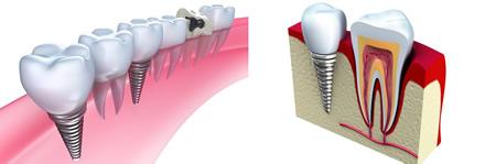 Próteses e Implantes