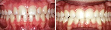 Fechamento de espaços com ortodontia